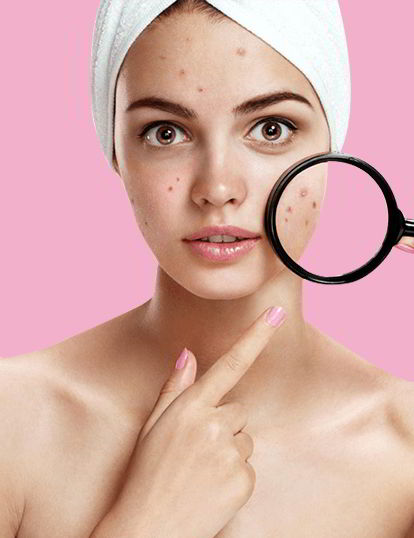 Skin Care Clinic The Ultimate Destination For All Skin Problems Vcare Skin Clinic